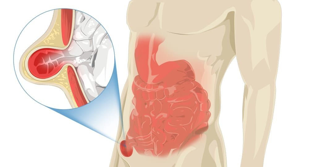 Pain in Inguinal Hernia